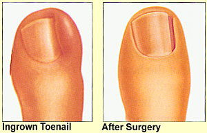 ingron-toenail-befor1.jpg - large