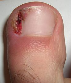 ingrown-toenails.jpg - large