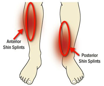 shin-splints.jpg - large